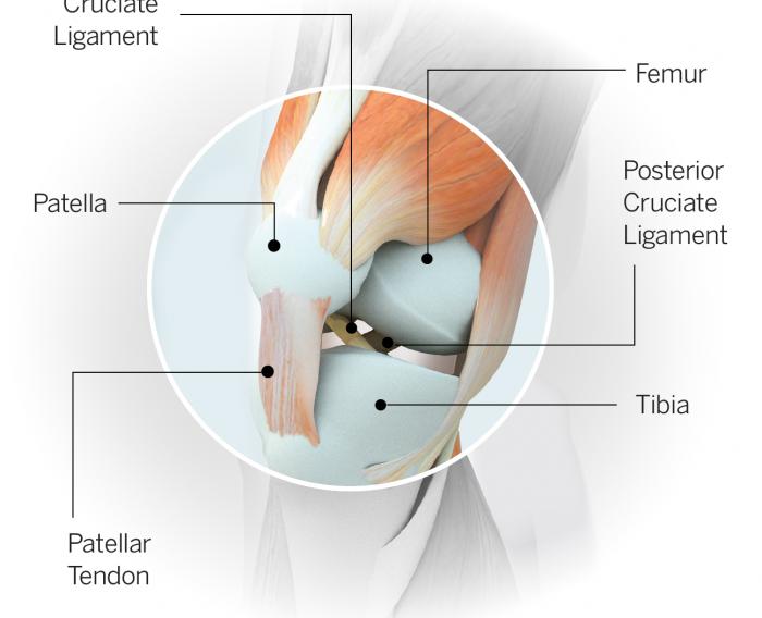 آسیب رباط صلیبی خلفی (PCL)