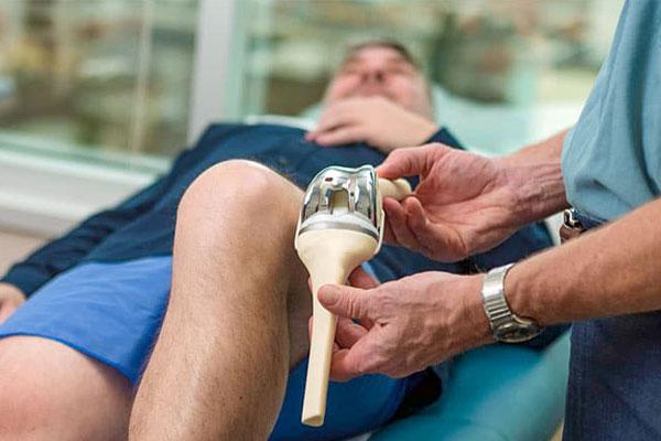 در چه افرادی تعویض مجدد مفصل زانو ضروری است؟